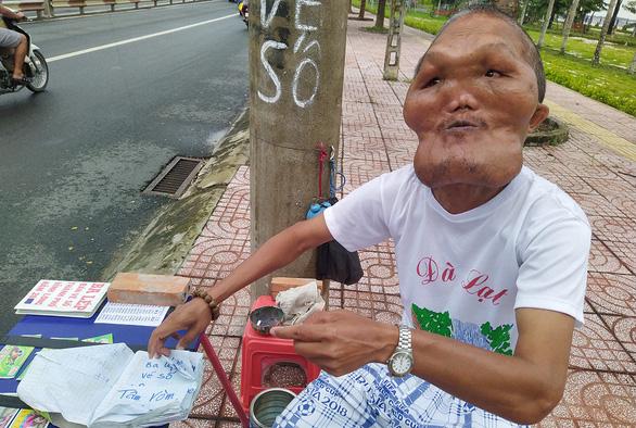 Vietnamese man with facial disfigurement keeps on smiling, feeding birds